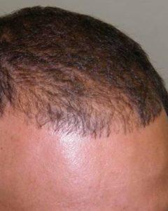 До проведения мезотерапий волос