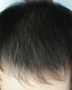 После проведения процедуры волос