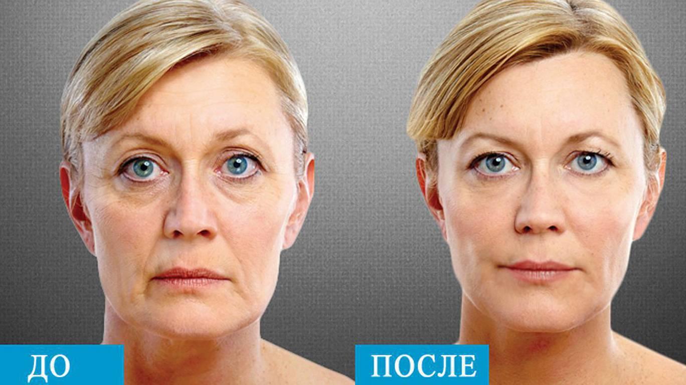 РФ Лифтинг до и после процедуры